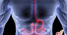 Причины и лечение варикозного расширения вен пищевода