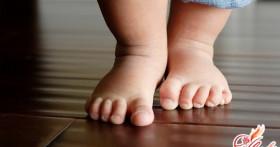 Плоско-вальгусная деформация стоп ребенка: причины, лечение, профилактика