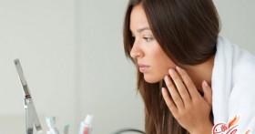 Лечение угрей возможно! Полезные советы
