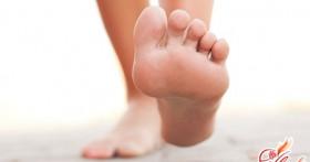 Как справиться с деформацией большого пальца стопы?
