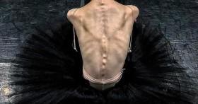 Как заболеть анорексией и чем это грозит в будущем