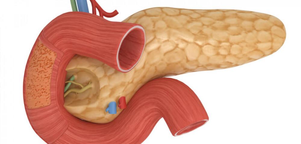 Панкреонекроз поджелудочной железы, от чего бывает и как лечить.Какие симптомы панкреонекроза.