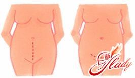 кесарево сечение - разрезы кожи