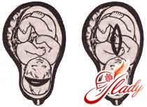 Кесарево сечение - разрезы матки