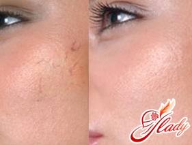Купероз на лице: лечение в домашних условиях