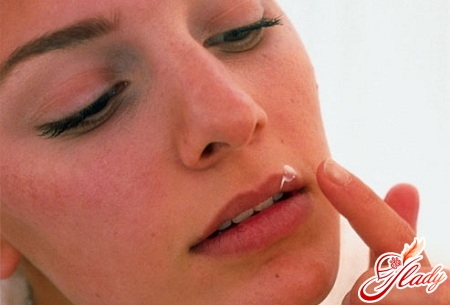 как лечить герпес на губах в домашних условиях