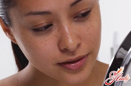 пигментация на лице лечение
