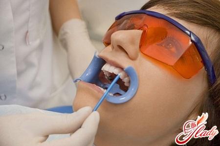 Отбеливание зубов в нижнекамске цена