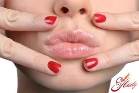 герпес на губах симптомы
