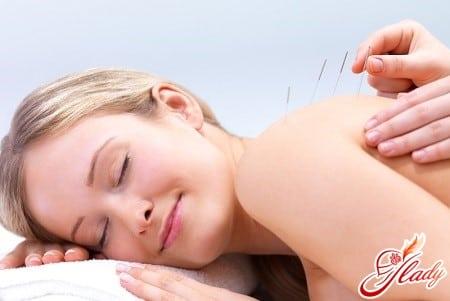 акупунктура для расслабления тела