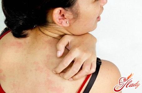 лекарственная аллергия лечение