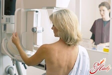 выявление папилломы молочной железы