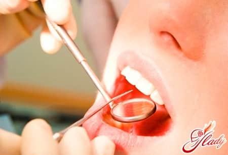 при появлении красных точек на языке нужно так же обратиться к стоматологу