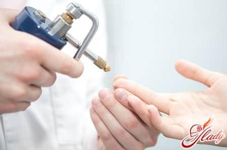 лечение бородавок азотом