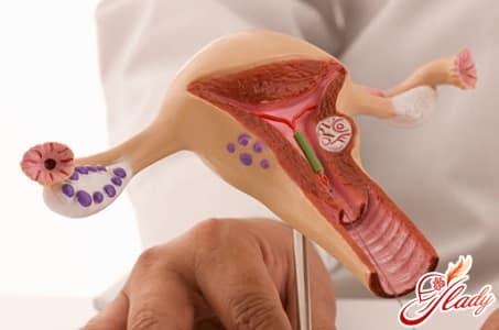 внутриматочные средства
