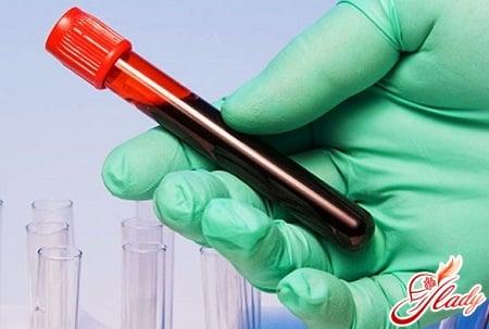 Кровь на тромбоциты как сдавать