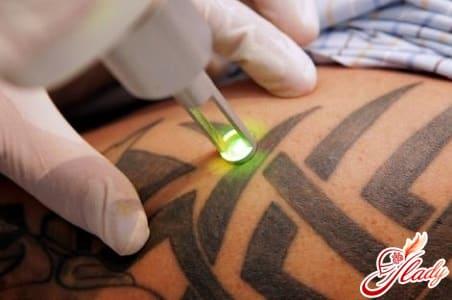 процесс лазерного удаления тату