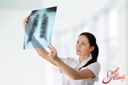 причины появления туберкулеза