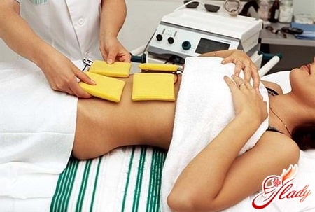 Радиоволновое лечение эрозии шейки матки: прижигание без ожогов