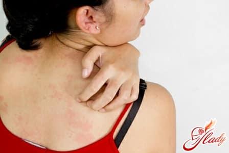 сильные высыпания на коже