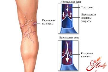 Причины тромбоза глубоких вен нижних конечностей