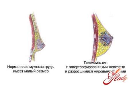 Сколько стоят грудные импланты в москве