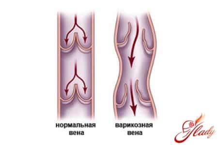 Варикозное расширение вен пищевода причины симптомы лечение и прогноз