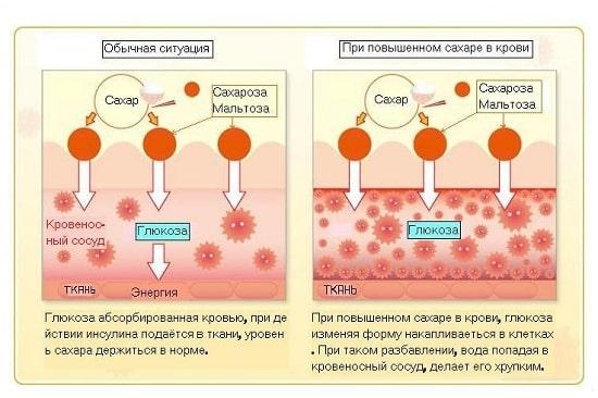 Процесс повышения сахара к крови