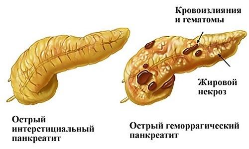 При острой форме панкреатита проводить лечение с помощью овса нежелательно ввиду его желчегонных свойств