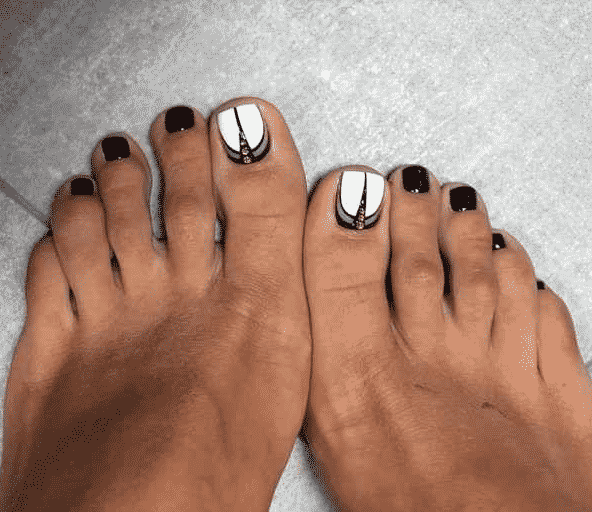 Удаление косточек на ногах хабаровск
