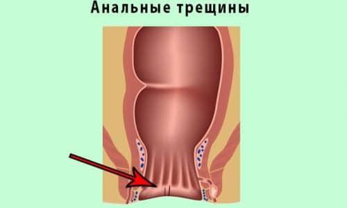 Анальные трещины, воспаления в геморроидальных узлах